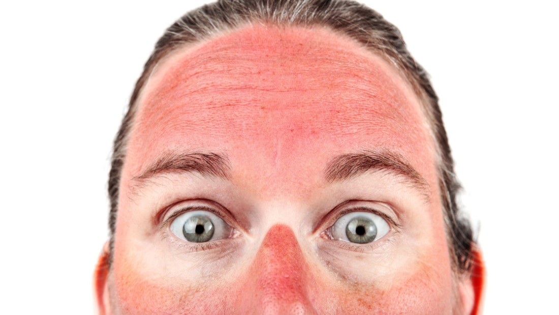 Hot mess: The grossest health concerns of summer